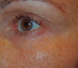 serum antiarrugas