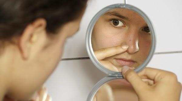 Acne: A Doença Mais Comum de Pele Ainda Cercada Por Lendas