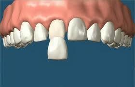 http://www.dentistinchennai.com/porcelain-veneers.php