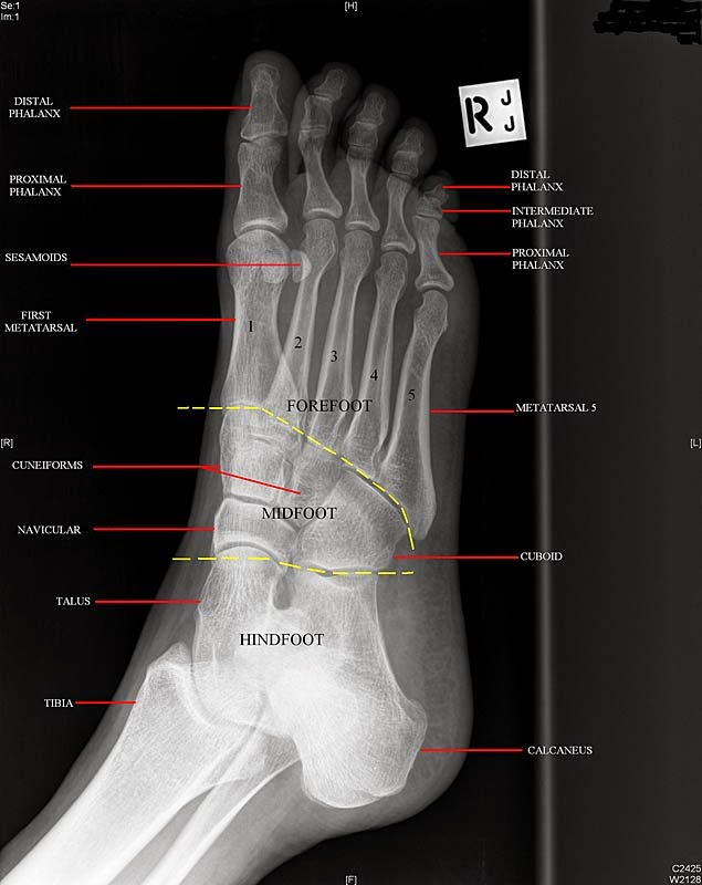Foot lateral x-ray anatomy | Radiology Anatomy Images
