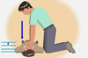 CPR Cardiac Arrest