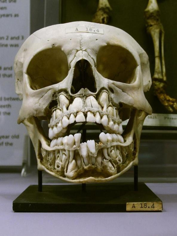 Como los cráneos de los niños se ven mientras se preparan para perder sus dientes de leche