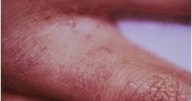 how to kill scabies on face