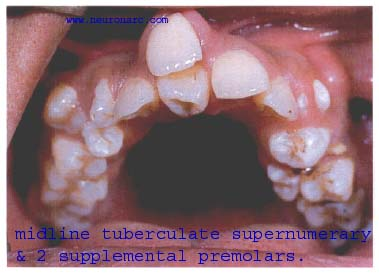 Hyperdontia or Supernumerary teeth