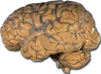 Imagen del Cerebro del hombre (Vista lateral)