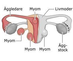 pengobatan mioma uteri