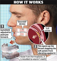 Mouth piece to prevent snoring