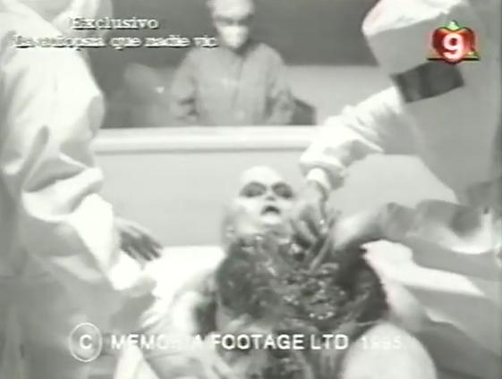 autopsia trucha