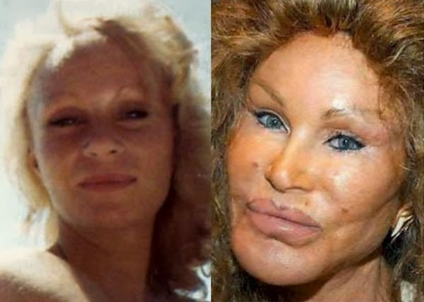 Jocelyn Wildenstei