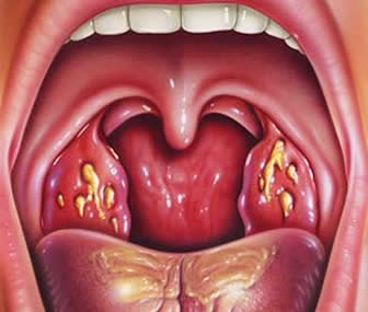tratamiento eficaz angina