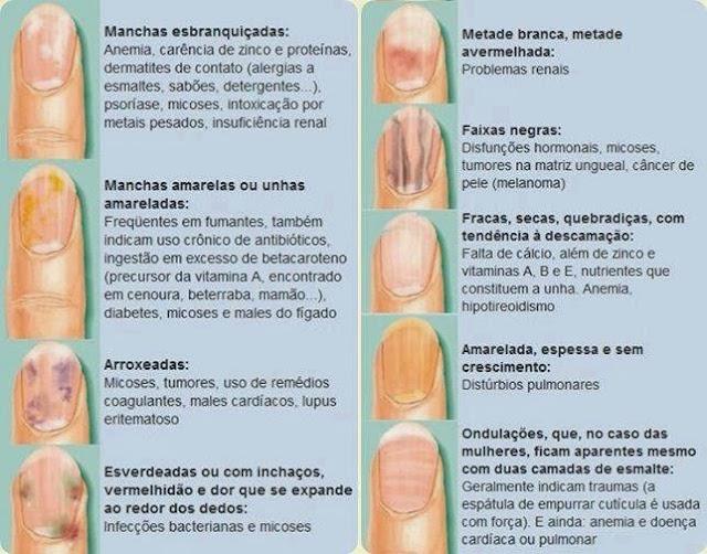 Suas unhas podem estar te dando um alerta, preste atenção.