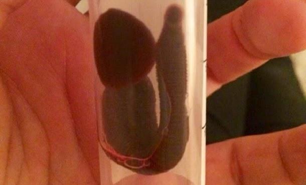 Mulher encontra sanguessuga enorme a viver no seu nariz (com foto)