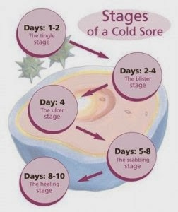 Can Cold Sores Be Transmitted Through Food