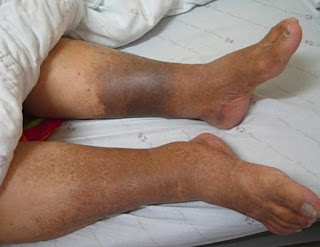 A dermatite ocre é uma das complicações de varizes que não foram tratadas de forma adequada