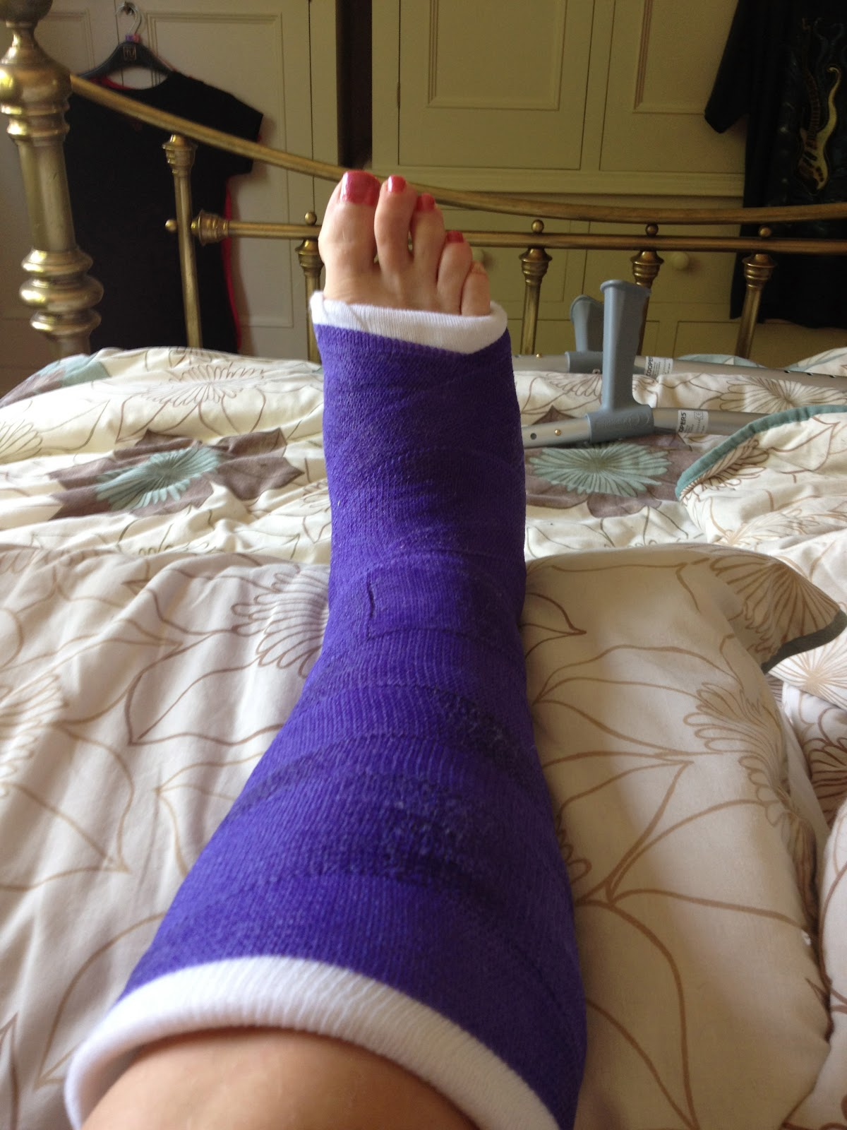 Doll Leg Cast http://onbeingaminimum.blogspot.com/2012/06/not-again-back-in-plaster.html