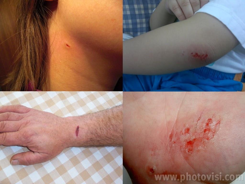 كيفية إزالة آتار الجروح نهائياً وإلى الأبد!!