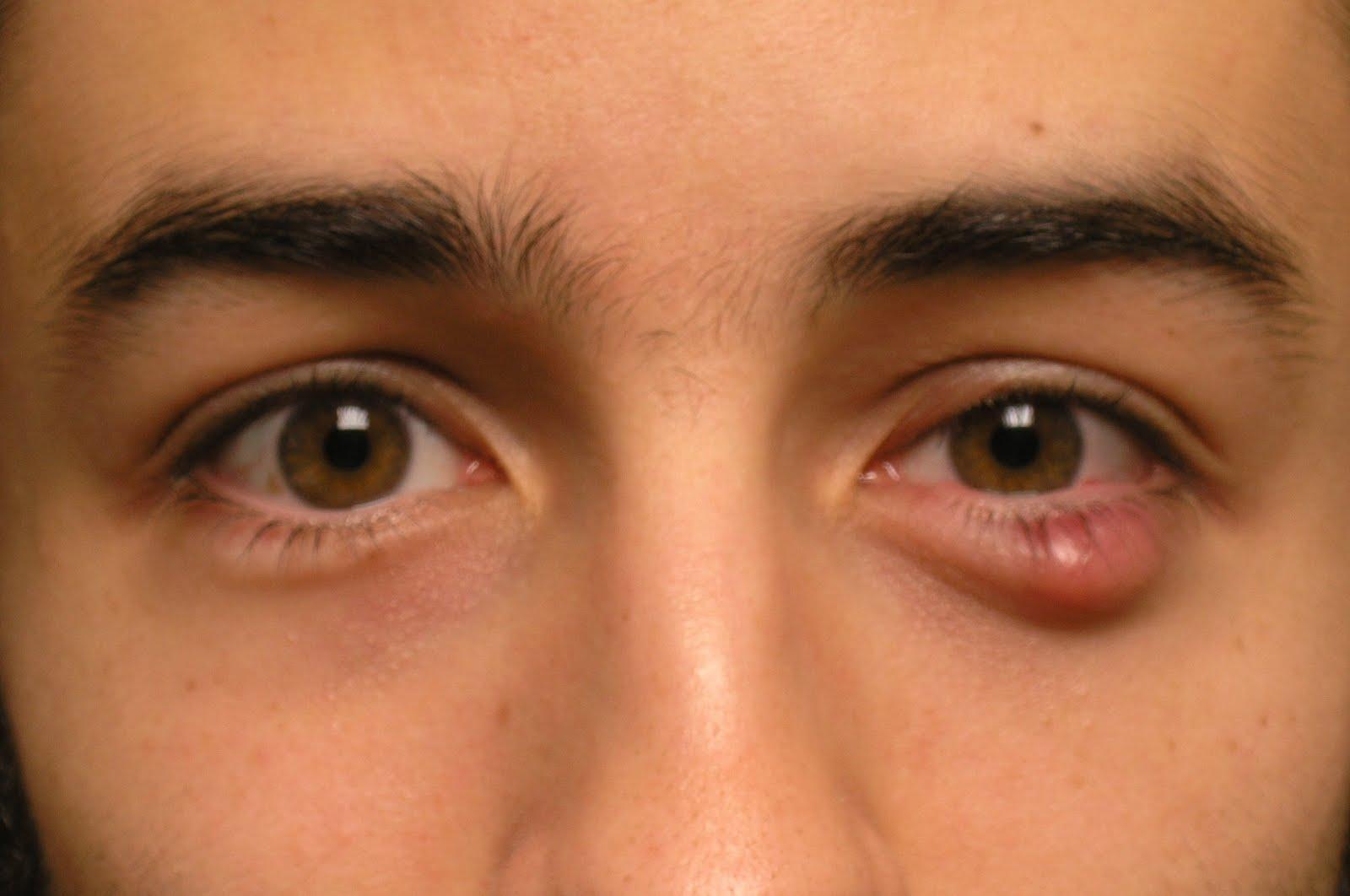 Лечение красных глаз в домашних условиях 336