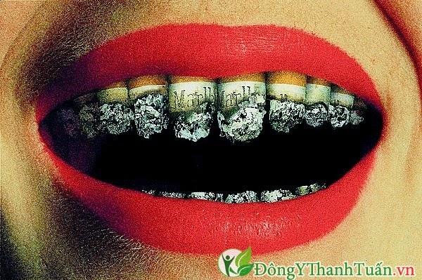 Hút thuốc lá - Nguyên nhân gây viêm lợi