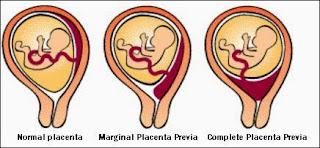 bahaya uri dibawah semasa mengandung