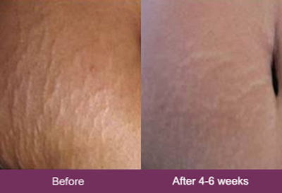 mederma before and after stretch marks