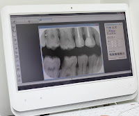 digital xray dental