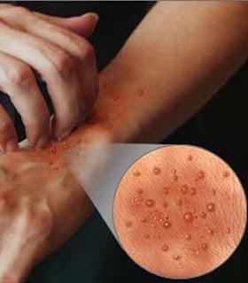 Traitement Traitements locaux de l'Eczema - Carenity - Guide