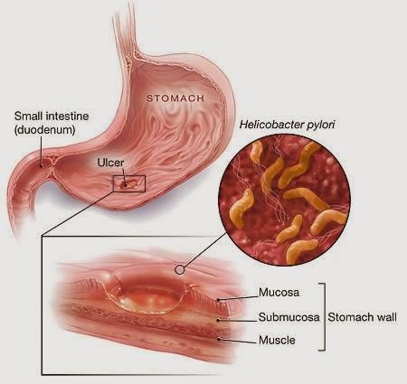ernährung bei gastritis bei katzen ayurvedische.jpg