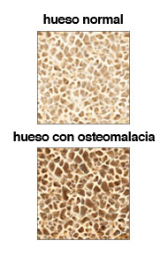 Densidad ósea de un hueso con osteomalacia