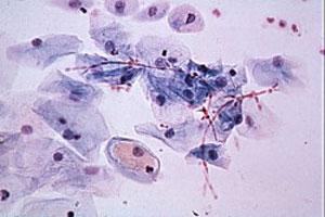 Infecciones por levaduras
