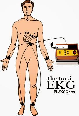 elektrokardiogram jantung