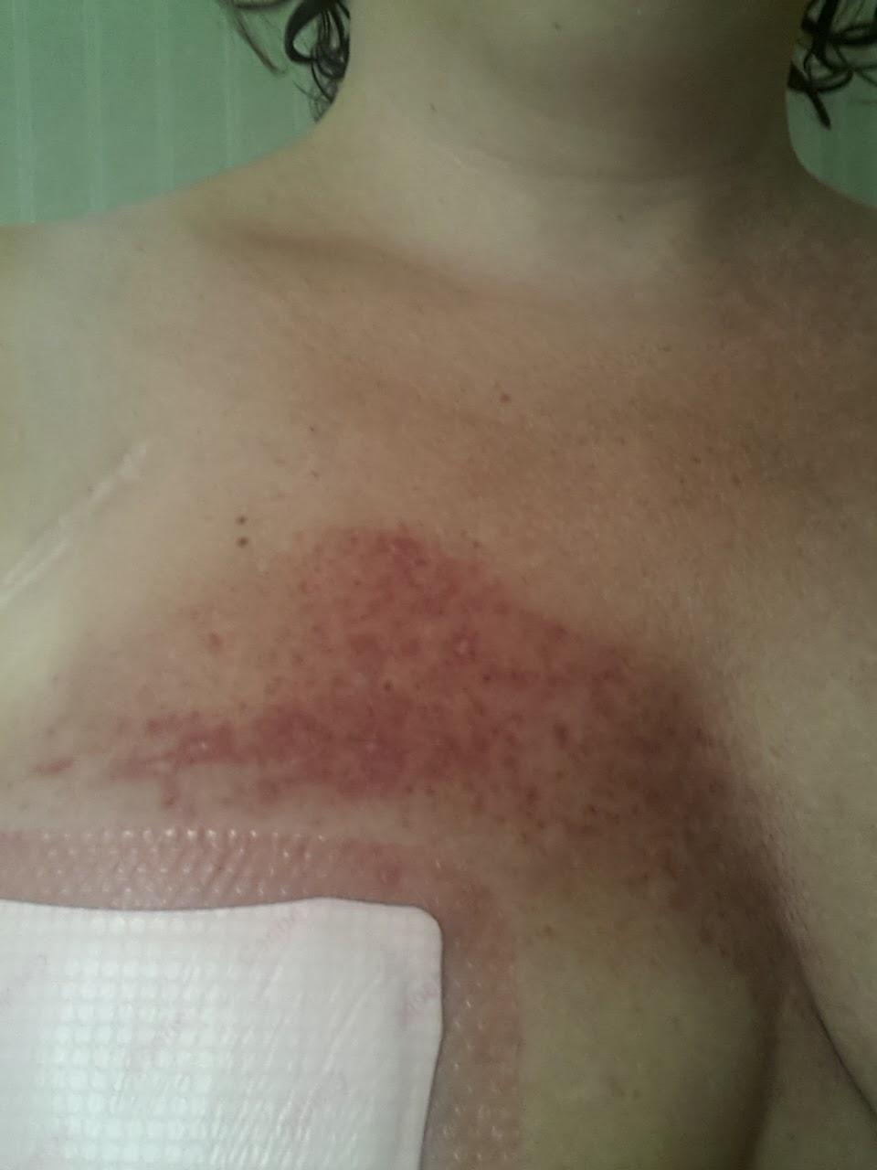 utslag på bröstet cancer