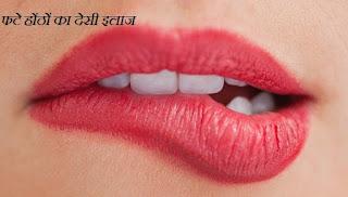 फटे होंठों का इलाज , Lip Care Tips in Hindi Language , होठों का फटना, फटे होंठों का देसी उपचार, अगर होंठ फट गए तो क्या करे, सर्दियों में होठों की देखभाल,