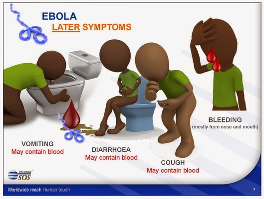 Signs and Symptoms of Ebola Virus