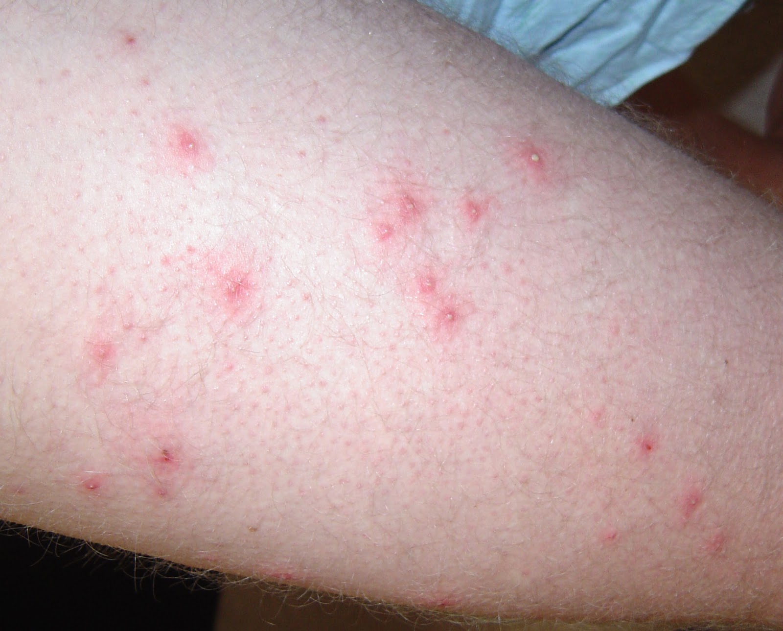 Folliculitis A Skin Condition Disease