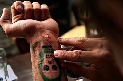 cut slit wrists scars powerful PTSD award winning stitches Iraq war effects photojournalism amazing heartbreaking