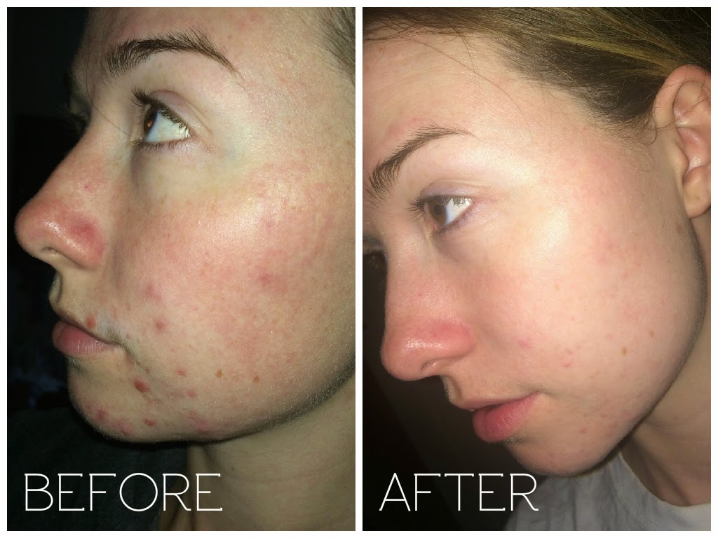 tetralysal before and after pictures