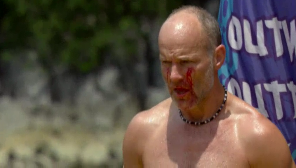 http://1.bp.blogspot.com/-9IlUbAfE86g/UG657s1mpNI/AAAAAAAADl0/6XWlkxmY6kE/s1600/Survivor+Philippines+episode+3+challenge+Mike+Skupin+injuries+bleeding+from+shattered+mask.PNG