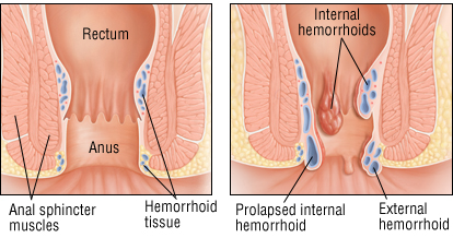 The Complete Guide To Hemorrhoids How To Get Rid Of