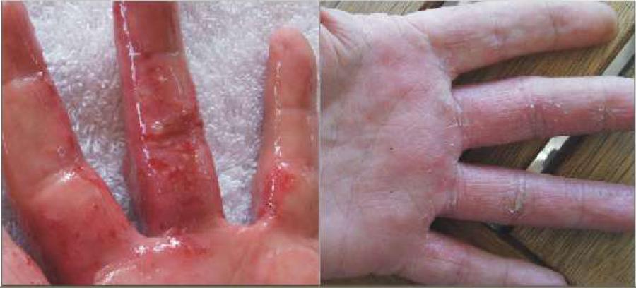 ACRYLIC NAILS: Ozone For Treating Nail - Acrylic nails