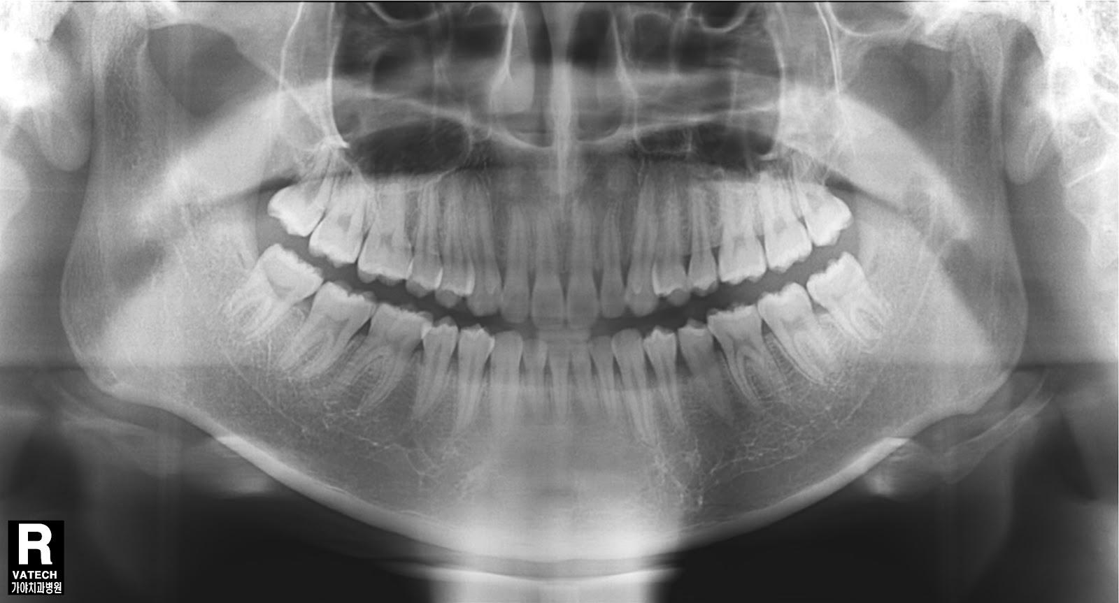 ohikendoit   dental radiography