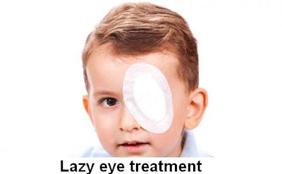 Lazy Eye Causes, Diagnosis And Treatment