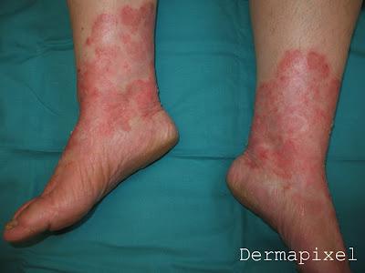 Atopichesky la dermatitis al recién nacido