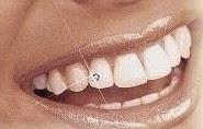 Đính kim cương cho răng thẩm mĩ ?