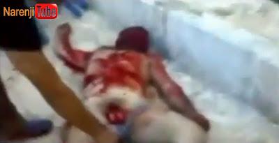 شکنجه در سوریه