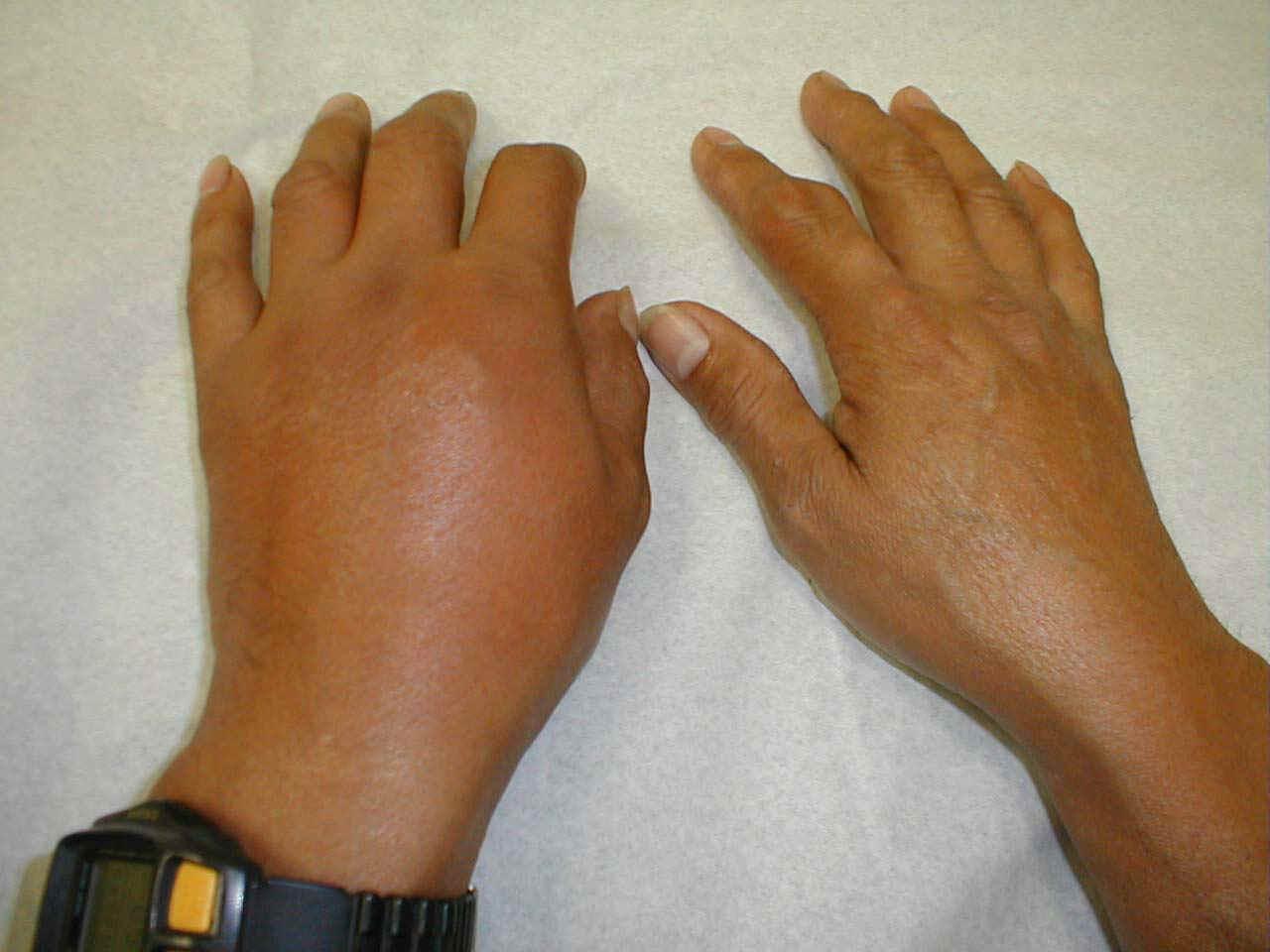 acido urico alto o que significa gota en el pie pdf acido urico sintomas en las manos
