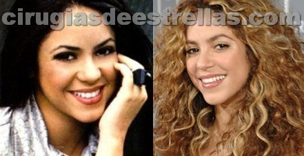 shakira antes y despues