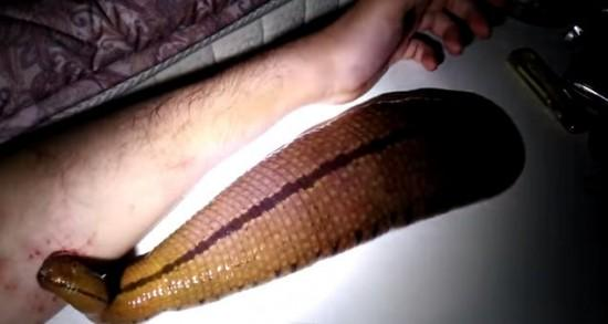 Man Keeps A Giant LEECH As A Pet… And Lets It Drink His Blood