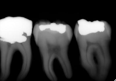 dental radiograph, amalgam, filling, tooth, xray, periapical