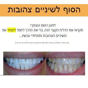הסוף לשיניים צהובות!!!