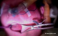 Nasal intubation general anesthesia dental treatment